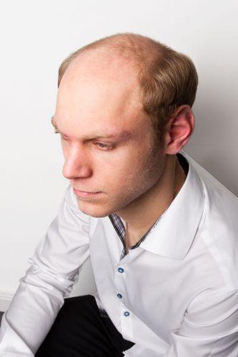 Hairbonding Vorher (1)